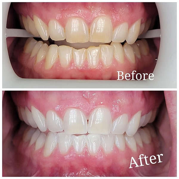 The before and after the smile of a patient from his teeth whitening
