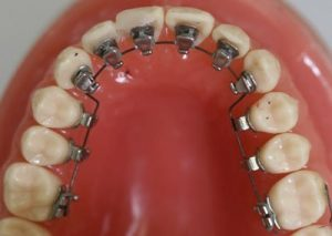 Dental Braces Regression: Caution For Young Adults