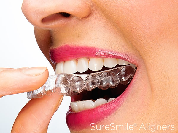 A woman putting on SureSmiles aligners